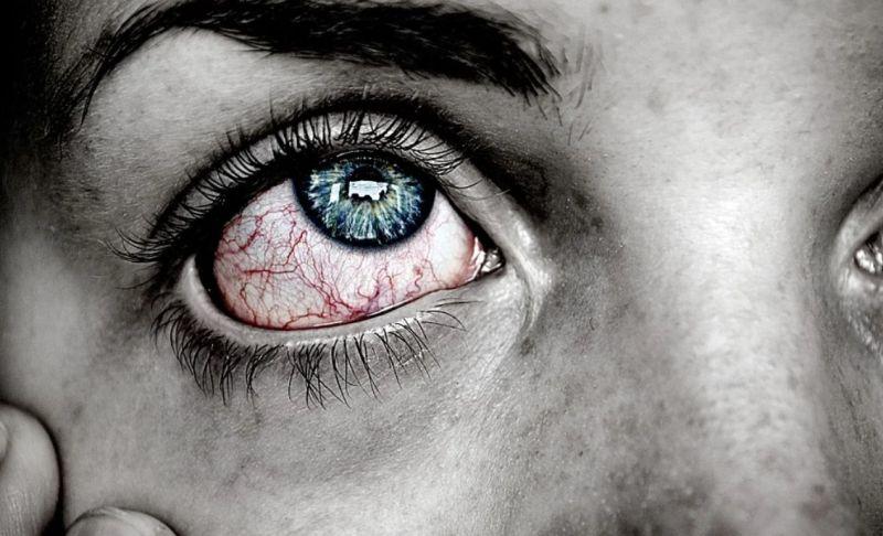 Naravne kapljice za oči jih vlažijo in pomirijo